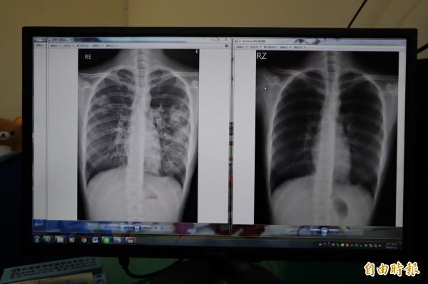 女大生X光檢查,肺部治療前(左)及治療後(右)。(記者歐素美攝)