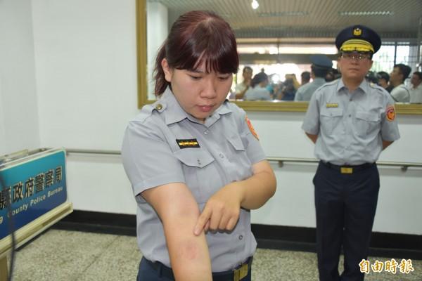 女警的手臂被咬傷。(記者葉永騫攝)