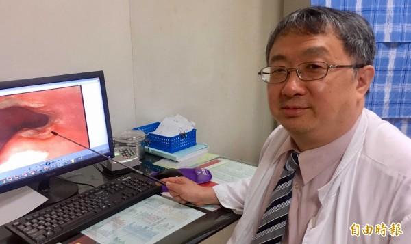 衛福部南投醫院院長洪弘昌透過內視鏡檢查出患者食道潰瘍位置,並予以治療。(記者謝介裕攝)