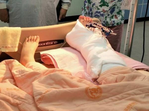 執勤時遭撞傷的彰化女警吳芳如,右腳手術順利,病情穩定。(記者湯世名翻攝)