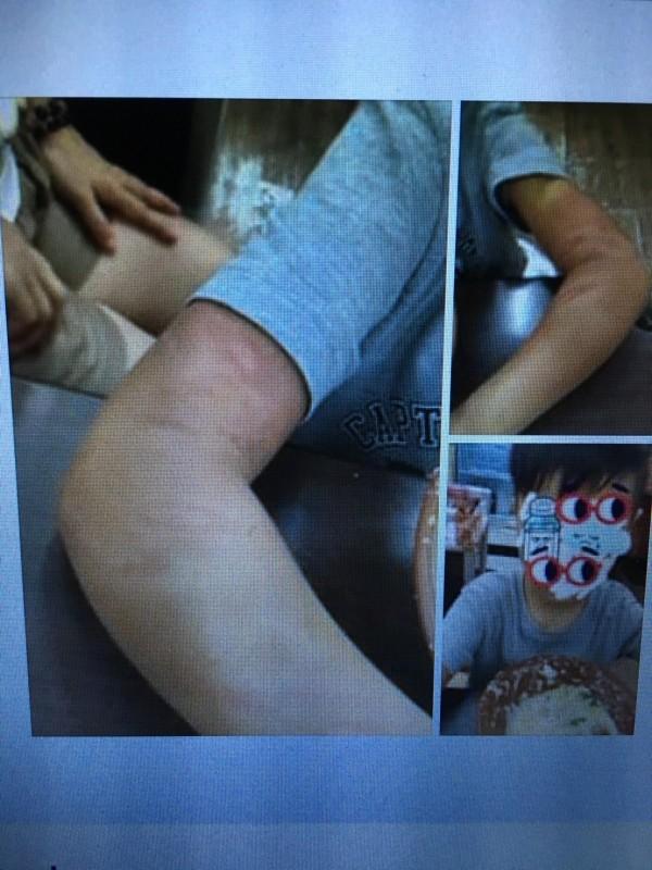 王童被母親打傷,手部有嚴重瘀傷。(記者林嘉東翻攝臉書汐止集團)