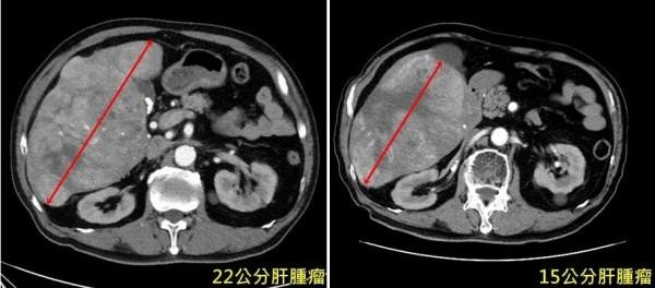 台北一名陳姓老伯,3個月前檢查發現長出22公分大肝腫瘤(左),經亞大醫院以標靶藥物配合「標靶光子刀」治療後,腫瘤已明顯縮小(右)。(記者陳建志翻攝)