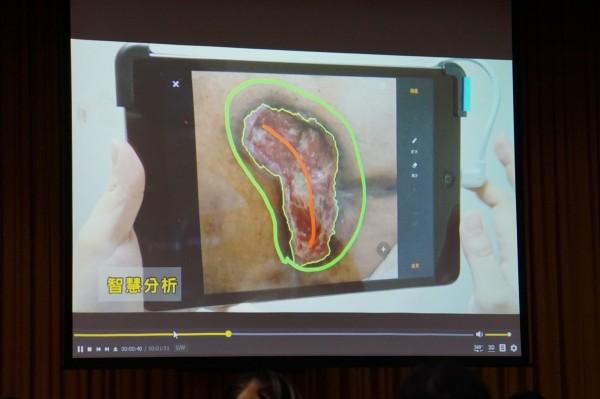 「智慧傷口分析」儀器可將傷口影像傳送給醫師,再給予現場的傷口照護師醫療指導。(記者詹士弘翻攝)