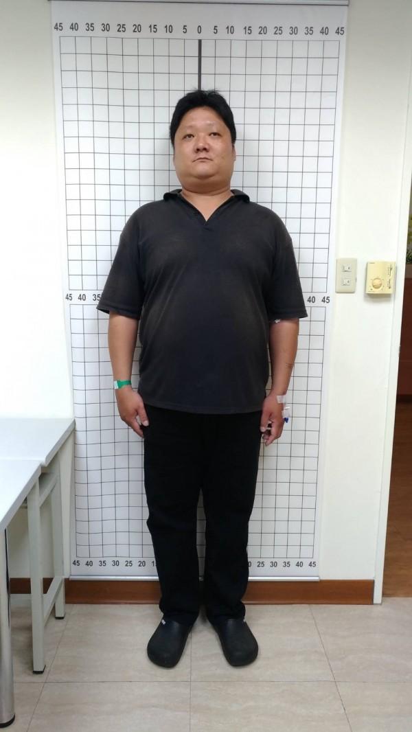 郭建麟平常把含糖飲料當水喝,還偏愛奶茶、肥肉、油炸類食物,體重一度達到121公斤。(大林慈濟醫院提供)