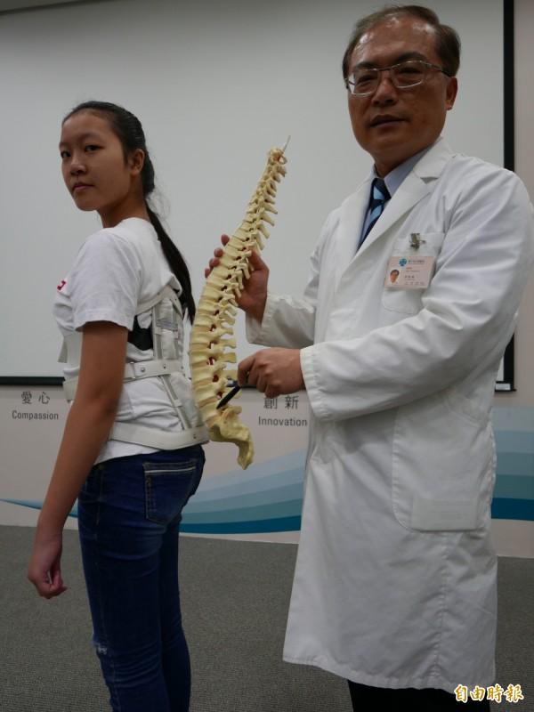 醫師李政鴻指洪姓少女脊椎滑脫合併嚴重壓迫神經,腰椎第5節與薦椎第1節幾乎脫開,不良於行、疼痛不已。(記者蔡淑媛攝)