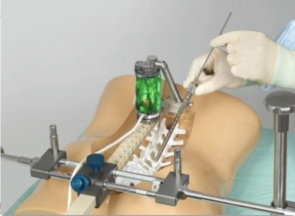醫師在機械手臂定位導下在脊椎釘入骨釘復位。(記者蔡淑媛翻攝)