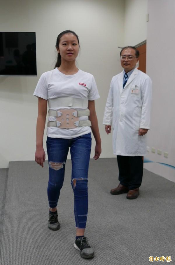 醫師李政鴻指洪姓少女經脊椎融合與骨釘固定矯正手術,現在能正常行走。(記者蔡淑媛攝)