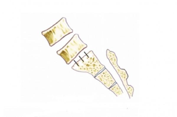 正常的脊椎排列,腰椎與薦椎應在同一直線上。(記者蔡淑媛翻攝)