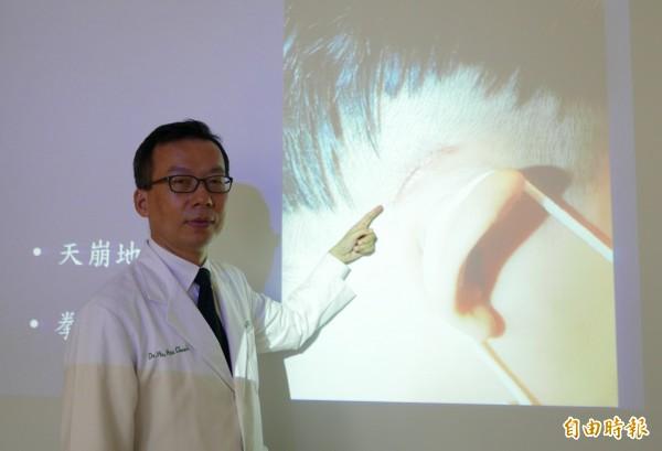 醫師何旭爵指出,人工電子耳微創手術傷口僅3公分。(記者蔡淑媛攝)