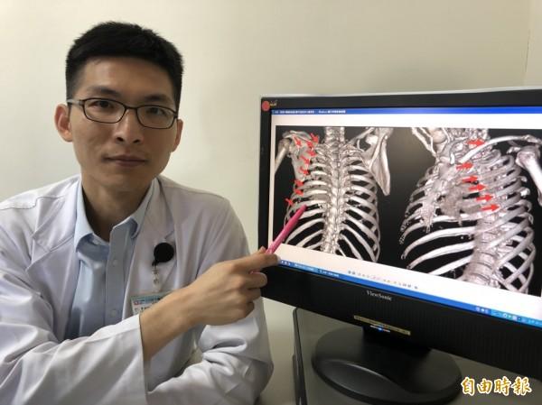 骨科部醫師楊鎮源表示,透過3D胸廓重組影像可見患者15處骨折。(記者歐素美攝)