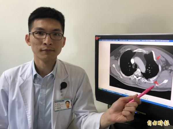 骨科部醫師楊鎮源表示,電腦斷層掃描明顯發現患者左胸(圖片右側)被外力撞擊後,一肋骨斷裂(箭頭處)成3段,肺臟凹陷成類似貓(黑色處)的形狀。右胸(圖片左側)是正常肺臟和肋骨。(記者歐素美攝)