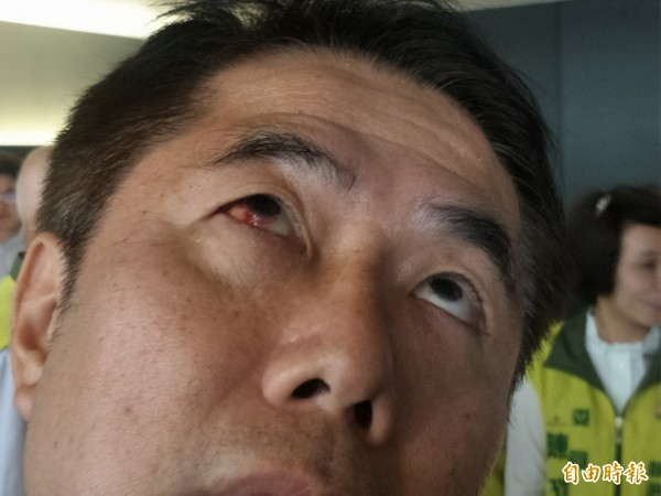 黃偉哲的右眼因壓力大且揉眼睛而微血管破裂。(記者邱灝唐攝)