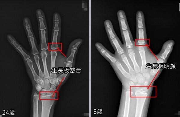 透過X光片,可清楚看出8歲孩童的生長板明顯(右),24歲時生長板已密合(左)就不可能再長高。(記者陳建志翻攝)