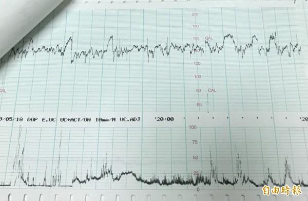 何延慶醫師表示,正常的胎兒接受胎心監測時,會出現波動明顯的狀況。(記者陳建志攝)