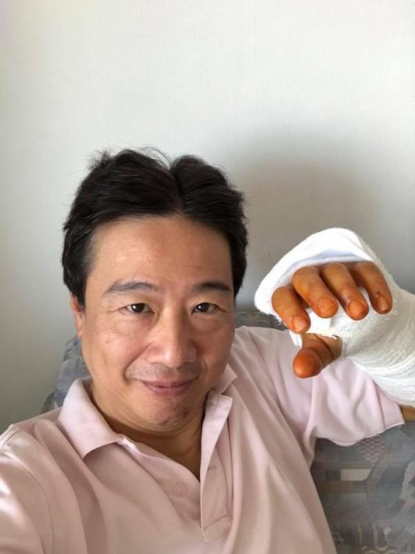 大提琴家張正傑7月在維也納騎單車發生車禍,左手骨折。(翻攝張正傑臉書)