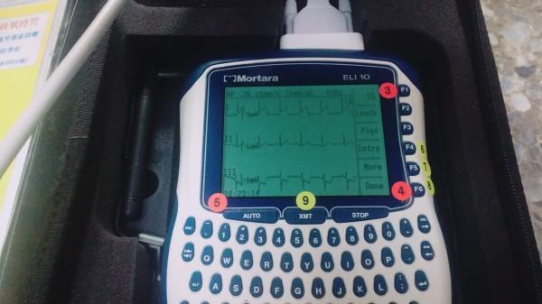 新竹市消防局於去年建立該心電圖機系統,透過心電圖機監測病患的心電圖資訊,並將判讀圖型傳到責任醫院,讓責任醫院事先做好心導管手術準備,等病患到院就能直接送入重症急救室進行治療,施做心導管手術。(消防局提供)