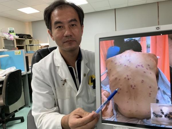 醫師毛彥喬指這名農夫全身被虎頭蜂螫了180多個傷口,引發多重器官衰竭。(記者蔡淑媛翻攝)