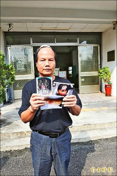 李慶和出示頭部受創的照片,對陳玉章提告求償。(資料照)