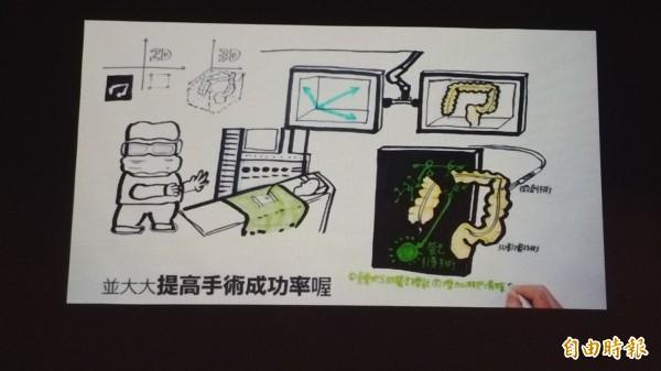 中國醫藥大學新竹附設醫院「3D腹腔鏡影像系統」影片。(記者廖雪茹攝)