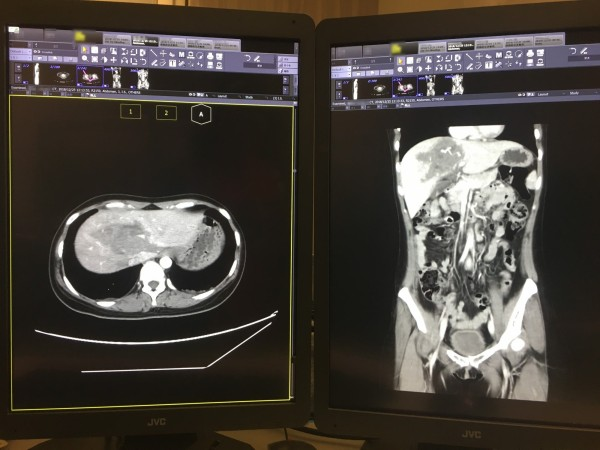 從電腦斷層血管攝影的影像看到傷者的右側肝臟出血。(中國醫藥大學新竹附設醫院提供)
