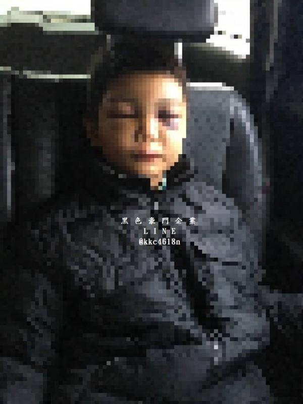 男童被打到鼻青臉腫,令人不忍。(翻攝黑色豪門企業)