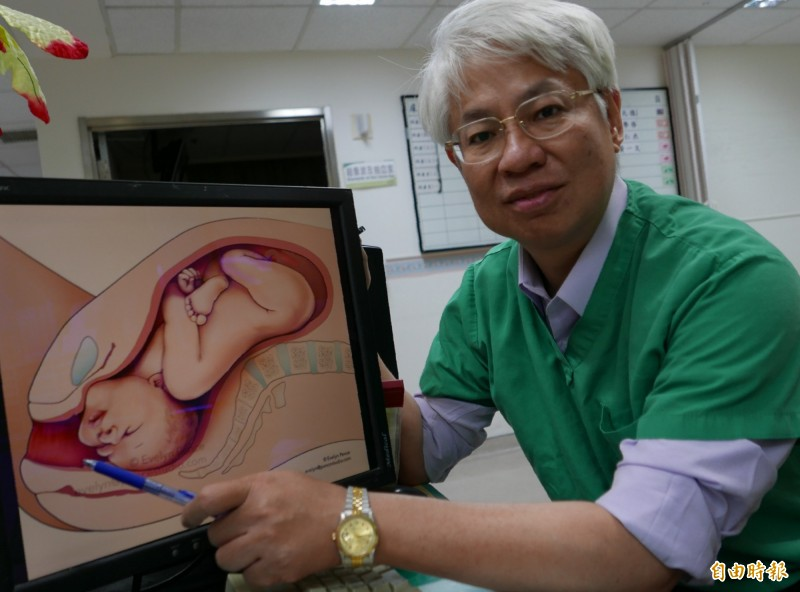 醫師黃元德指出,胎位以面產式生下,臉部面向產道先生出,容易難產。(記者蔡淑媛攝)