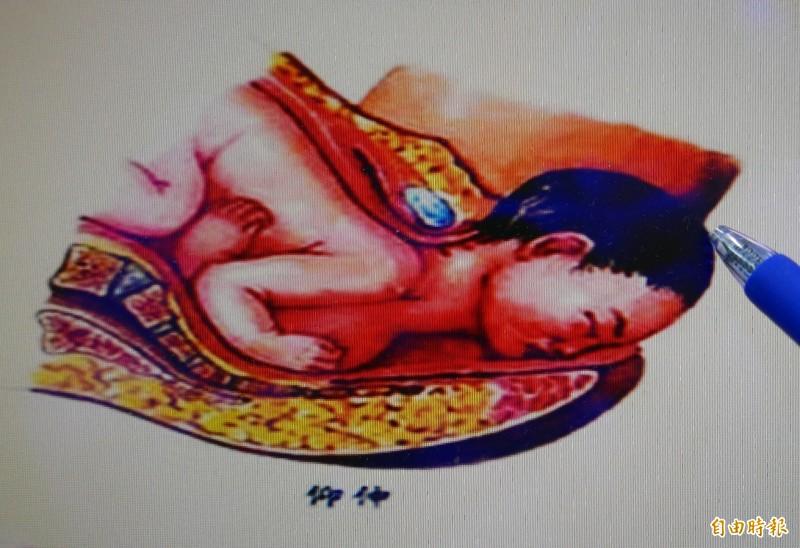 正常胎位為,頭頂朝向產道先生出。(記者蔡淑媛攝)