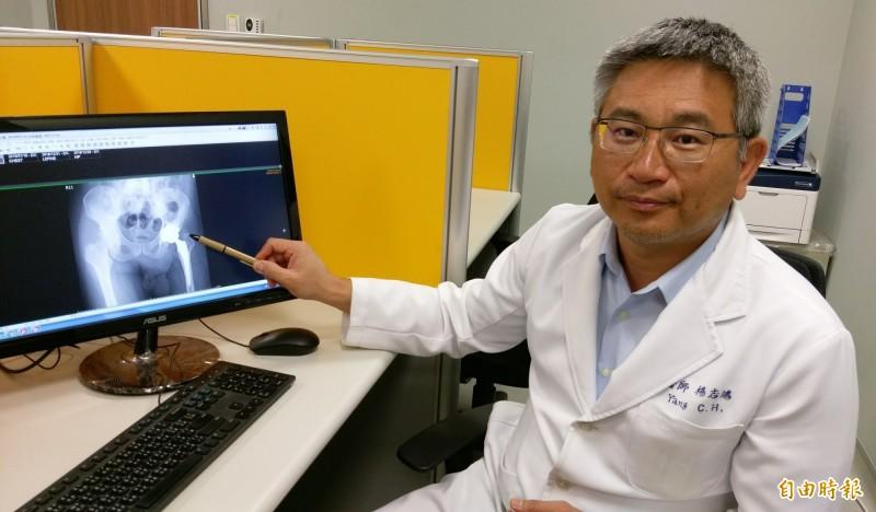台中42歲張姓男子左髖關節疼痛,長安醫院骨科主任楊志鴻檢查後發現是天性髖關節病變的「小兒股骨頭壞死」,安排接受「機器人手臂髖關節置換術」治療。(記者陳建志攝)