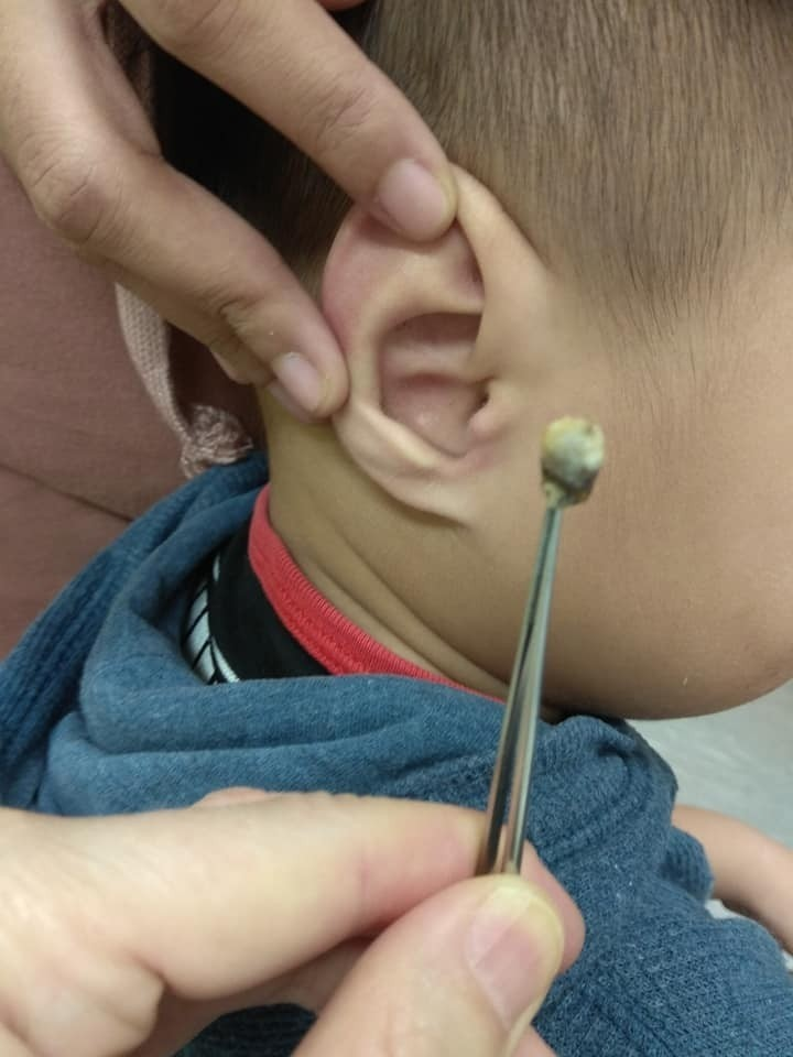 花蓮這名3歲童因為聽力異常帶去門諾醫院檢查,竟發現2公分大「耳屎怪物」卡耳內,夾出來讓媽媽心中放下大石。(門諾醫院提供)