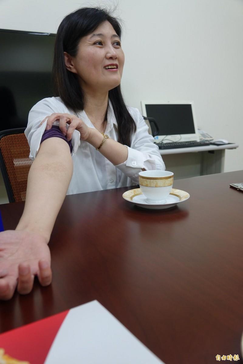 吳桂雲的手臂上,還留著創業初期完全手工炸蝦餅的傷痕。(記者劉曉欣攝)
