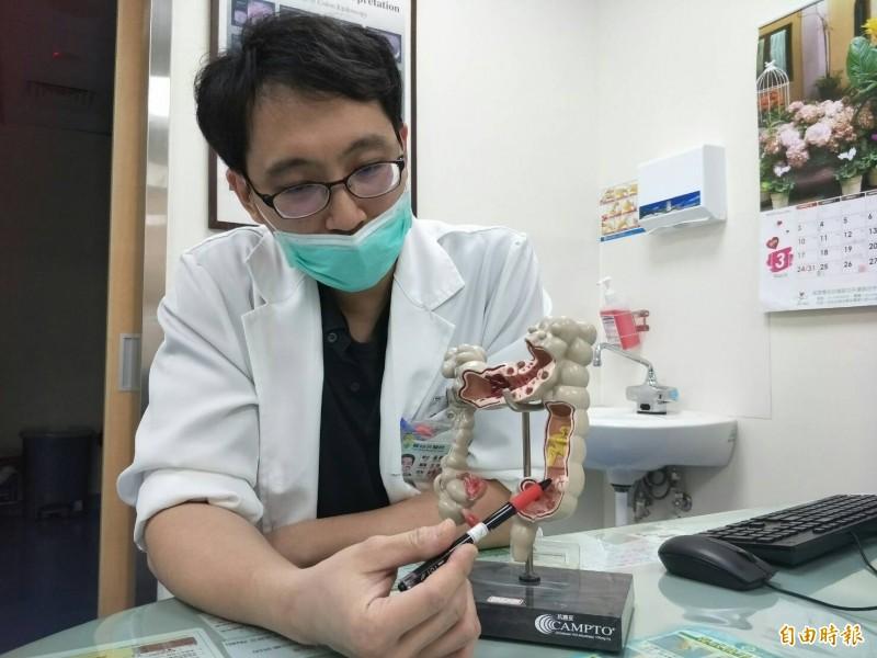 黃宏哲醫師筆指處即為常發生大腸腫瘤位置。(記者張軒哲攝)