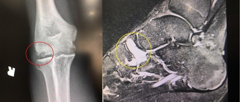 2名運動小將因過度訓練,分別在右手肱骨小頭(左)、右足距骨及舟狀骨(右)引起疲勞性骨折。(「活力得中山脊椎外科醫院」提供)