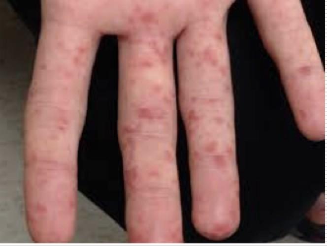 腸病毒典型症狀手足口症,會在手掌腳長水泡。(記者蔡淑媛翻攝)