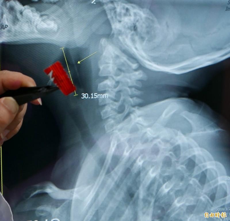 女童誤食鍍鋁塑膠糖果紙,卡在咽喉深處,有3公分大。(記者蔡淑媛攝)
