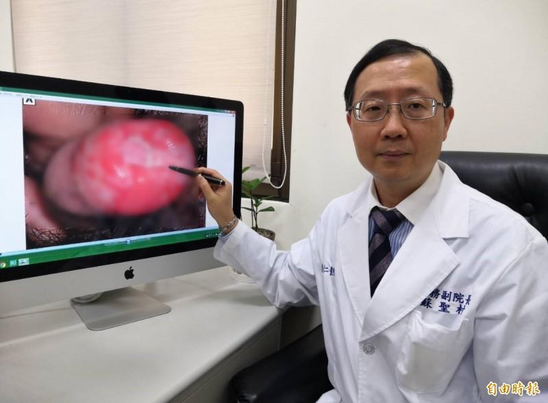 醫師蘇聖村指出,一名男子每天狂喝3000CC含糖飲料,日前「小弟弟」紅腫就醫,才發現血糖已爆表。(記者方志賢攝)