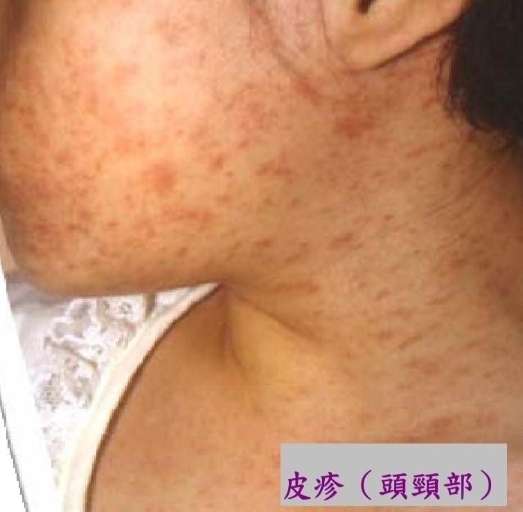 麻疹傳染力強,頭頸部會出現皮疹。(台中市衛生局提供)