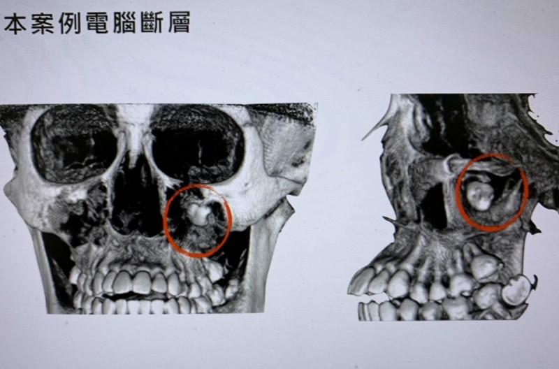 18歲女生嚕嚕經電腦斷層掃描,左眼下方竟然有1顆智齒。(記者湯世名翻攝)