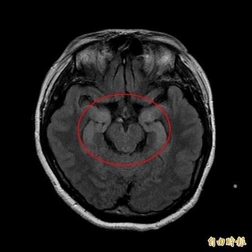 台中一名35歲蔡小姐罹患「抗NMDA受體腦炎」,接受核磁共振檢查時,發現紅圈處的海馬迴訊號強度過高。(記者陳建志翻攝)