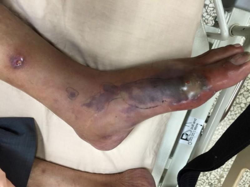 農夫左腳大拇指旁被黑腹眼鏡蛇咬傷,左腳嚴重發黑腫脹,壞死性筋膜炎,合併敗血症感感。(記者蔡淑媛翻攝)