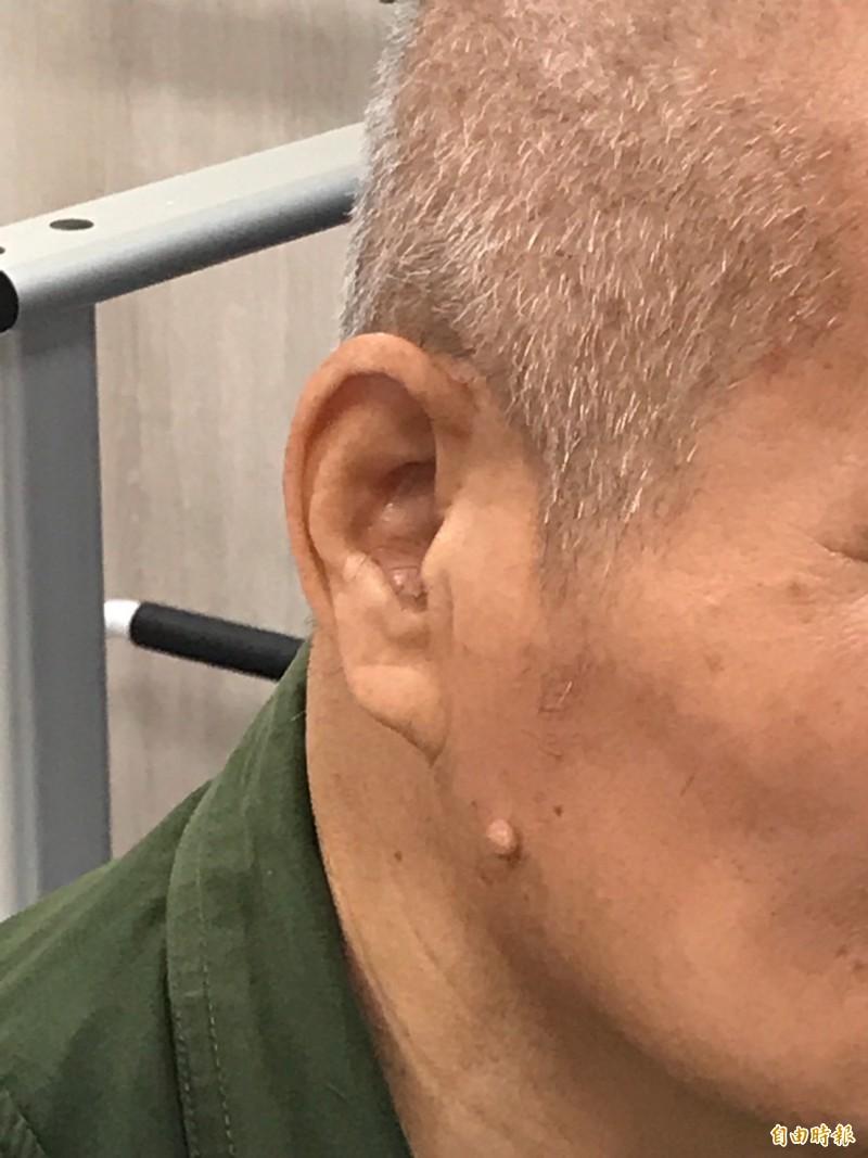 葉姓阿公的右耳耳垂下緣沒有暗示可能潛藏有心血管疾病的摺痕。(記者黃美珠攝)