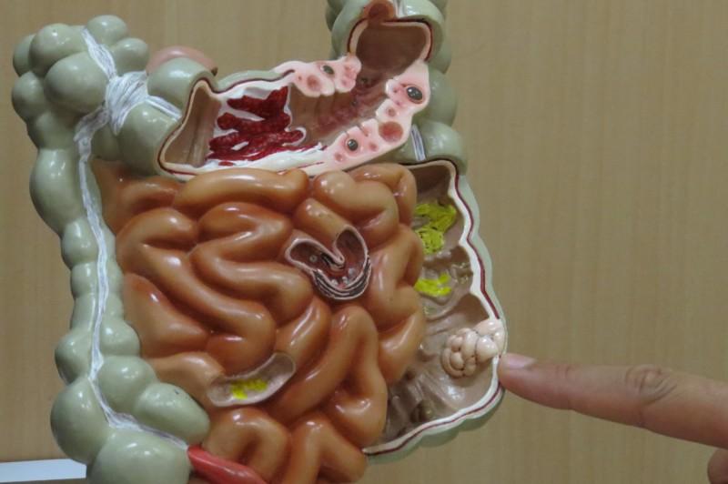 醫師指出林女最大的腫瘤在位於乙狀結腸轉彎的地方。(記者張軒哲翻攝)