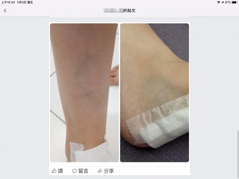 受傷學生附上被流浪狗攻擊後腳部傷痕。(圖擷取自「彰化人大小事」臉書)