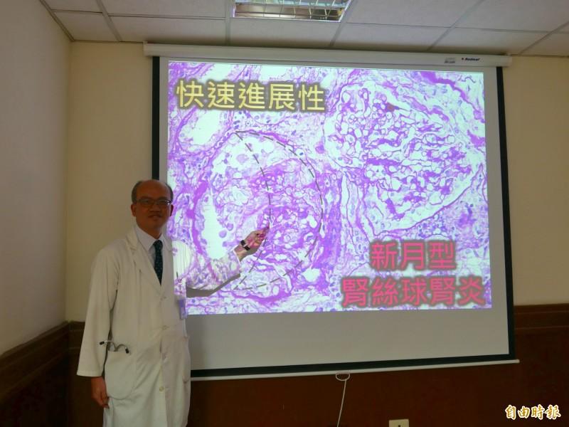 張浤榮說,新月型腎絲球腎炎的腎絲球中微血管排列呈現彎刀月形狀,會血尿、蛋白尿。(記者蔡淑媛攝)
