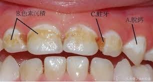 妊娠期常見色素沉澱、脫鈣及蛀牙等問題。(圖阮綜合提供)