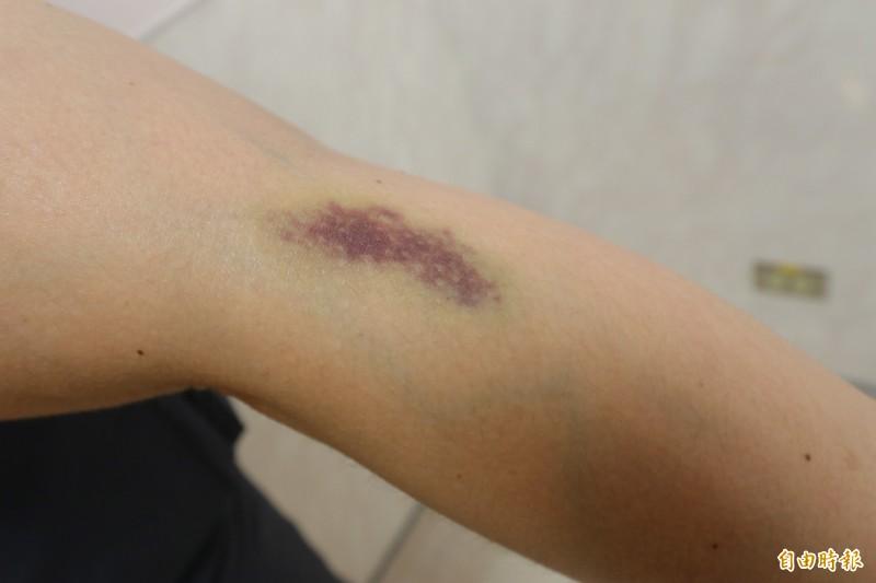 亞大醫院加護病房護理長蔣玉珍表示,民眾手臂抽血後若出現瘀青,多為止血方式不當造成。(記者陳建志攝)