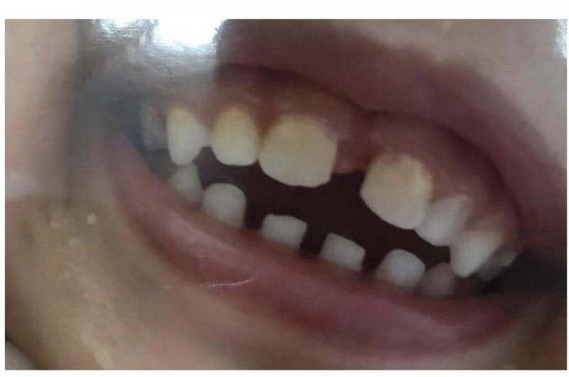 男童被撞到門牙鬆脫,牙髓壞掉。(擷自爆料公社)