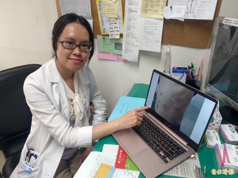 彰化醫院感染科主任莊佳慧指出,發現疑似帶狀皰疹的症狀,應在72小時內儘速就醫。(記者陳冠備攝)