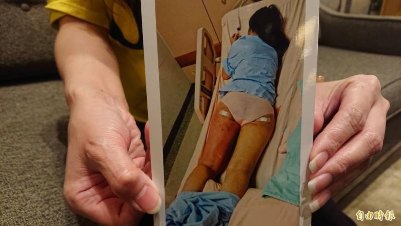蔡女的一雙玉腿變成「火腿」。(記者王捷攝)