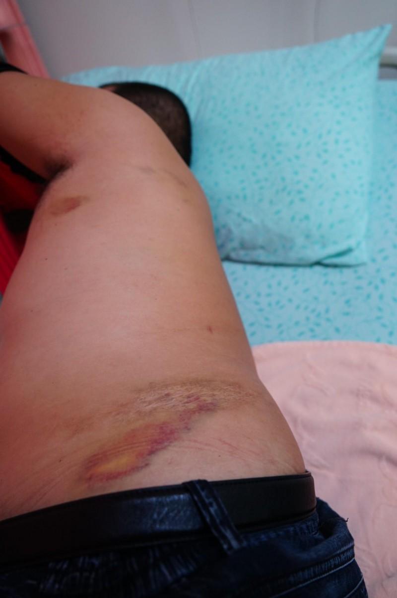 鄧木隆遭人毆傷,左側的肋骨更被打斷。(記者陳彥廷攝)