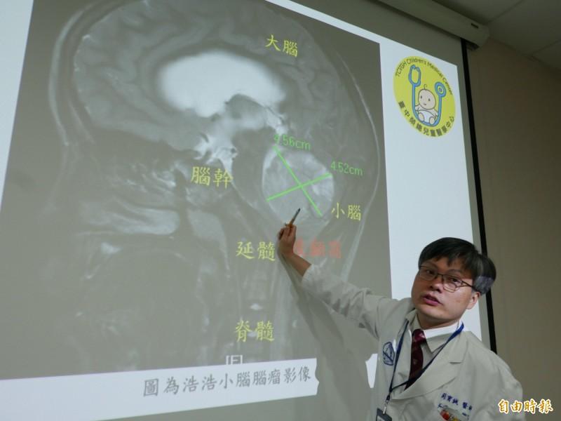 醫師周育誠指出,浩浩罹患髓母細胞瘤,在小腦長出5公分腫瘤,已經把腦幹神經壓歪。(記者蔡淑媛攝)